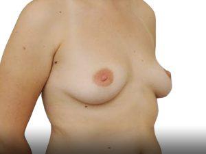 118791 מהצד לפני ניתוח הגדלת חזה בפרופורציה