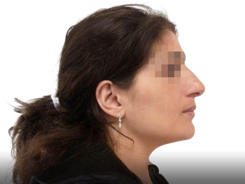 307517 לפני ניתוח אף בפרופורציה