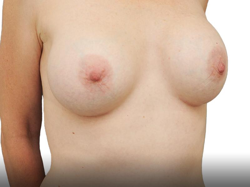 אחרי ניתוח הגדלת חזה בפרופורציה