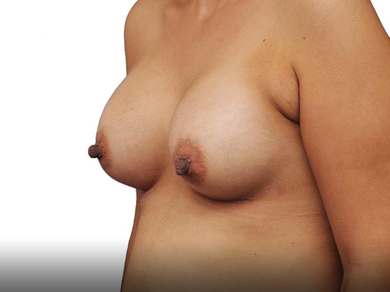 395315 אחרי ניתוח הגדלת חזה בפרופורציה