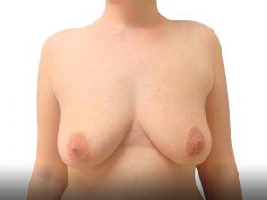 ניתוח הרמת חזה לפני
