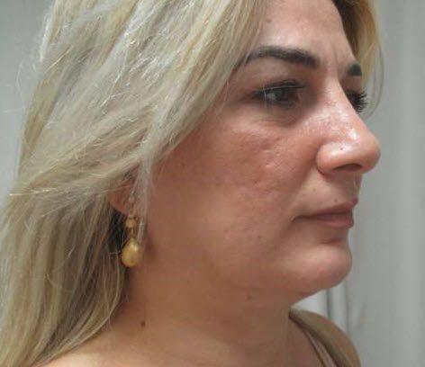 המלצה על ניתוח המסת שומן