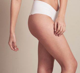 טיפול הזרקת קצף לורידים בפרופורציה