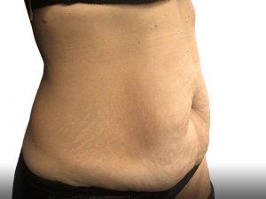 110869 מתיחת בטן ושאיבת שומן לפני