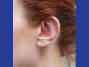 318209 אחרי הצמדת אוזניים בפרופורציה