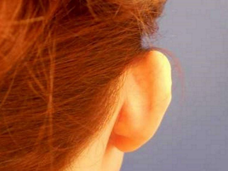 318209 לפני הצמדת אוזניים פרופורציה