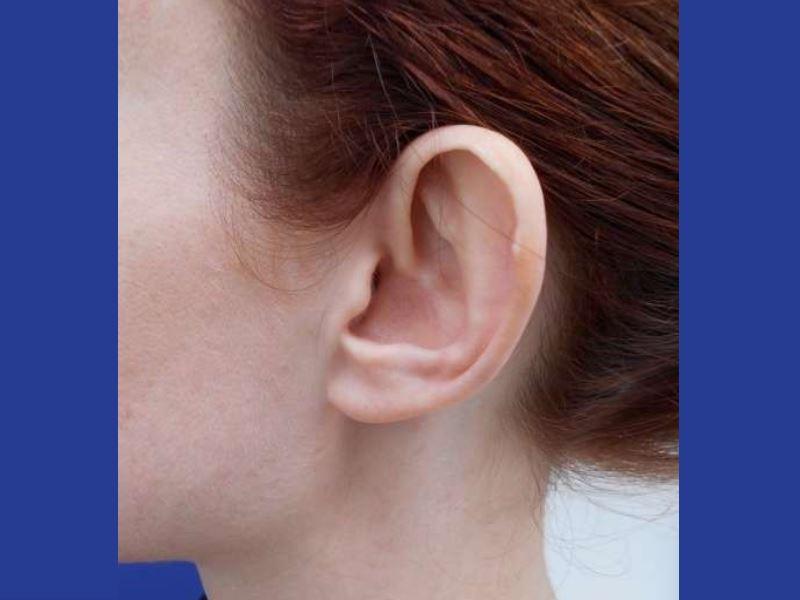 318209 לפני הצמדת אוזניים בפרופורציה