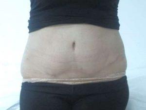 318601 ב - אחרי שאיבת שומן בפרופורציה