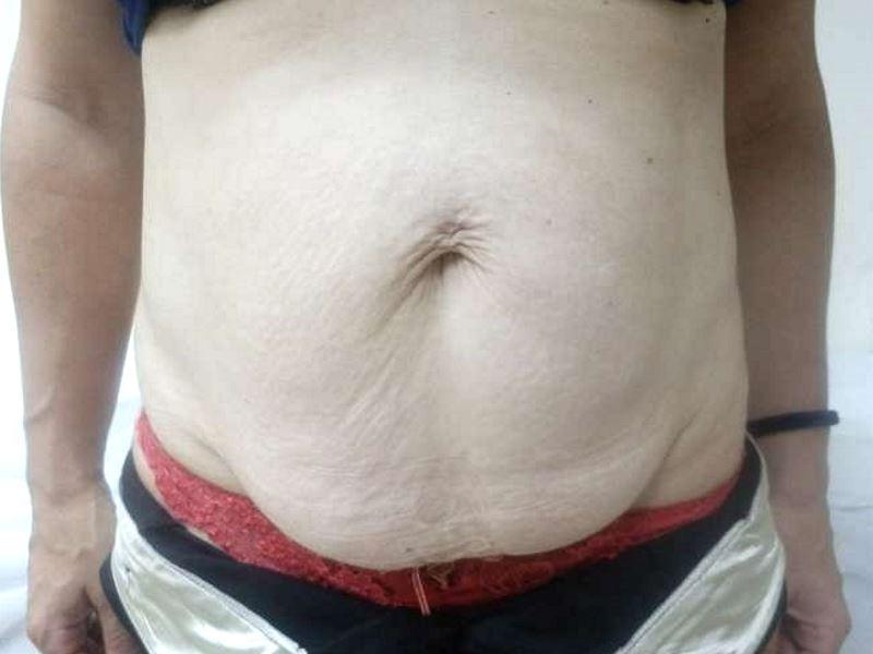 318601 ב - לפני שאיבת שומן בפרופורציה