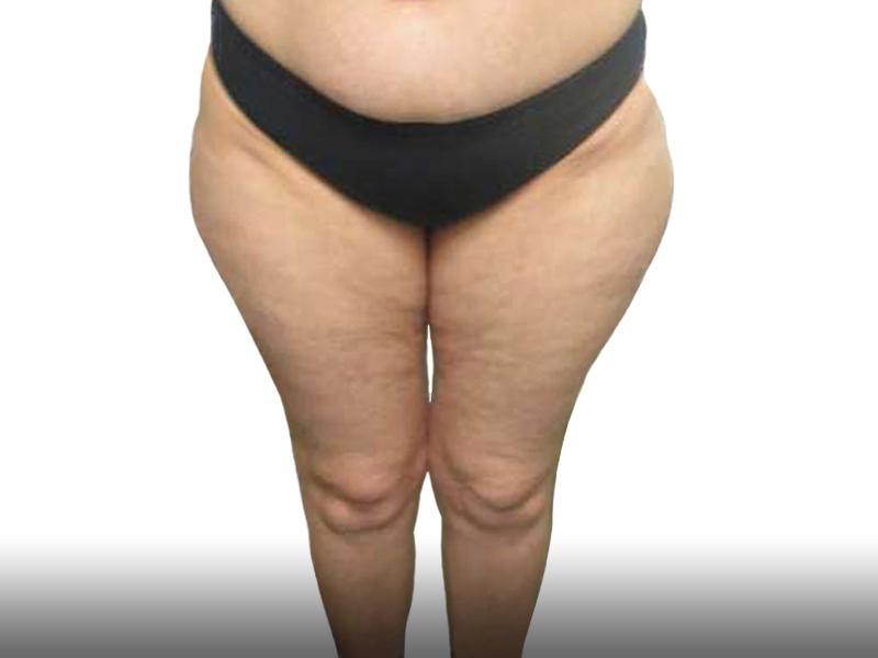 327654 לפני שאיבת שומן ירכיים בפרופורציה