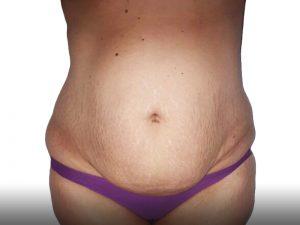 403088 לפני מתיחת בטן ושאיבת שומן