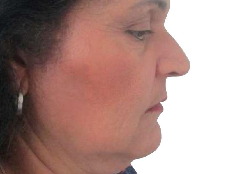 437860 לפני מתיחת פנים וצוואר בפרופורציה
