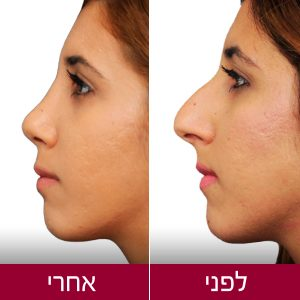 rhinoplasty-before-after-1-proportsia