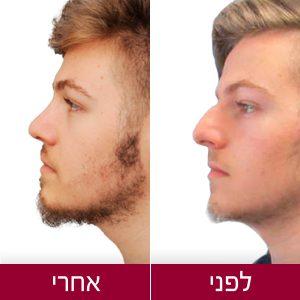 לפני ואחרי ניתוח אף - תמונות גבר - פרופורציה
