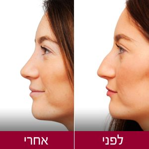 לפני ואחרי ניתוח אף - תמונות אישה - פרופורציה