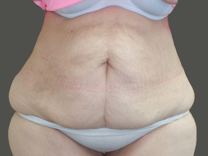 315255 לפני מתיחת בטן בפרופורציה