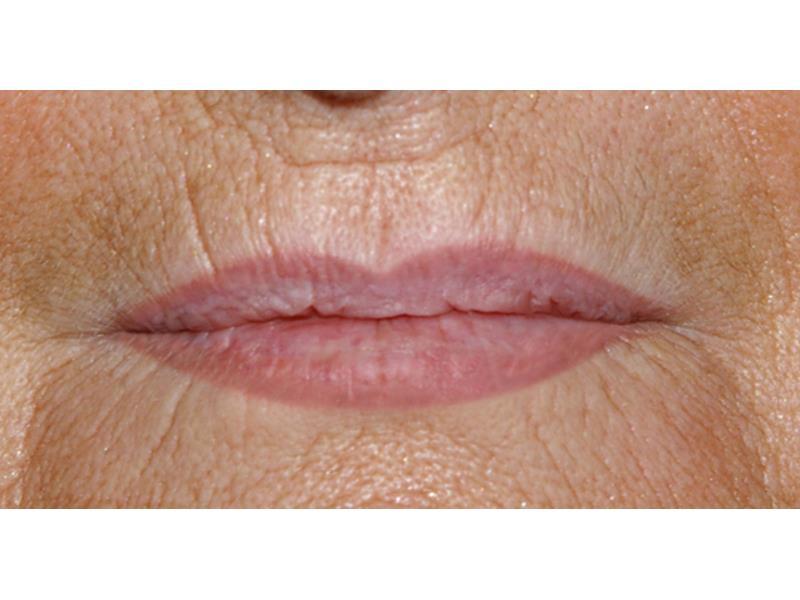 אחרי איפור קבוע לשפתיים בפרופורציה