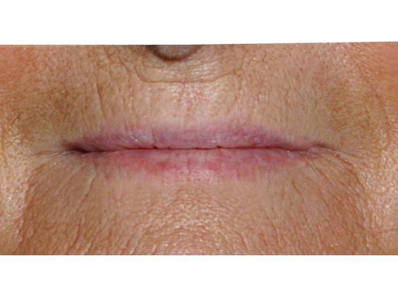 לפני איפור קבוע לשפתיים בפרופורציה