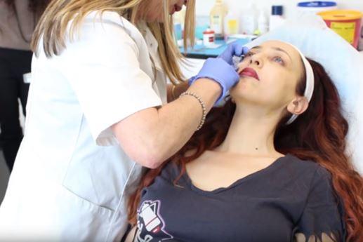 קארין ארד טיפול חומצה היאלורונית בפרופורציה