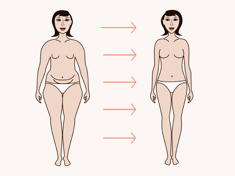 למי מתאים ניתוח מתיחת בטן?