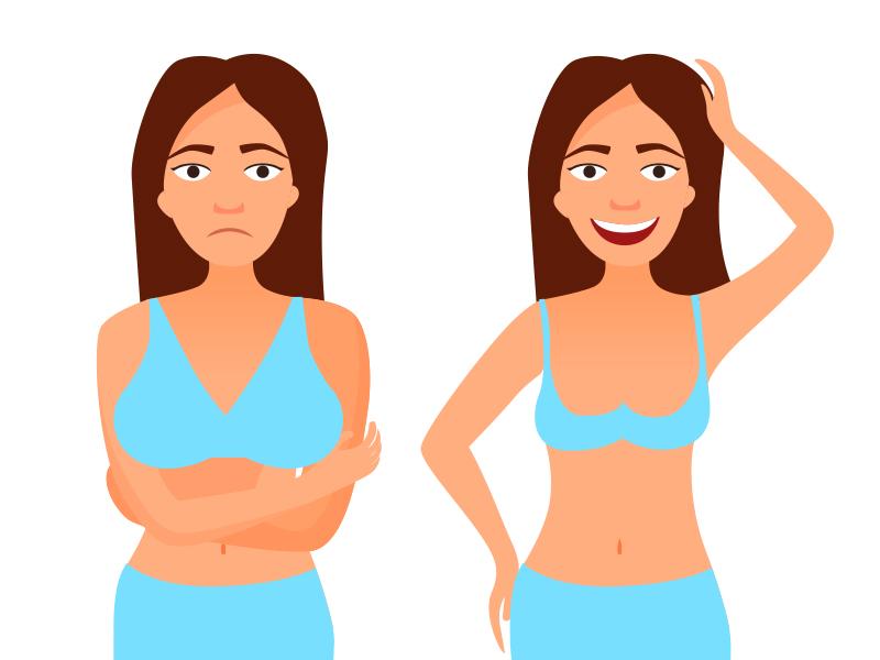 באיזה מקרים מומלץ לבצע ניתוח להקטנת חזה?