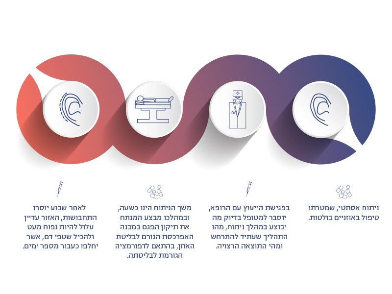 מהלך ניתוח הצמדת אוזניים בפרופורציה